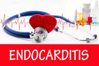 19 Most Common Symptoms Of Endocarditis You Should Never Ignore
