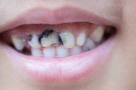 What Causes Tooth Decay? – 10 Surprising Causes