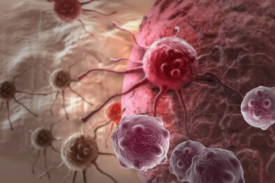 What is Cancer? Overview, Warning Signs, Symptoms, and Causes