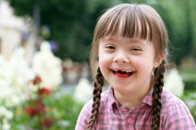 Everything You Need to Know About Down Syndrome: Overview, Signs and Symptoms, Causes, Diagnosis, and Treatment